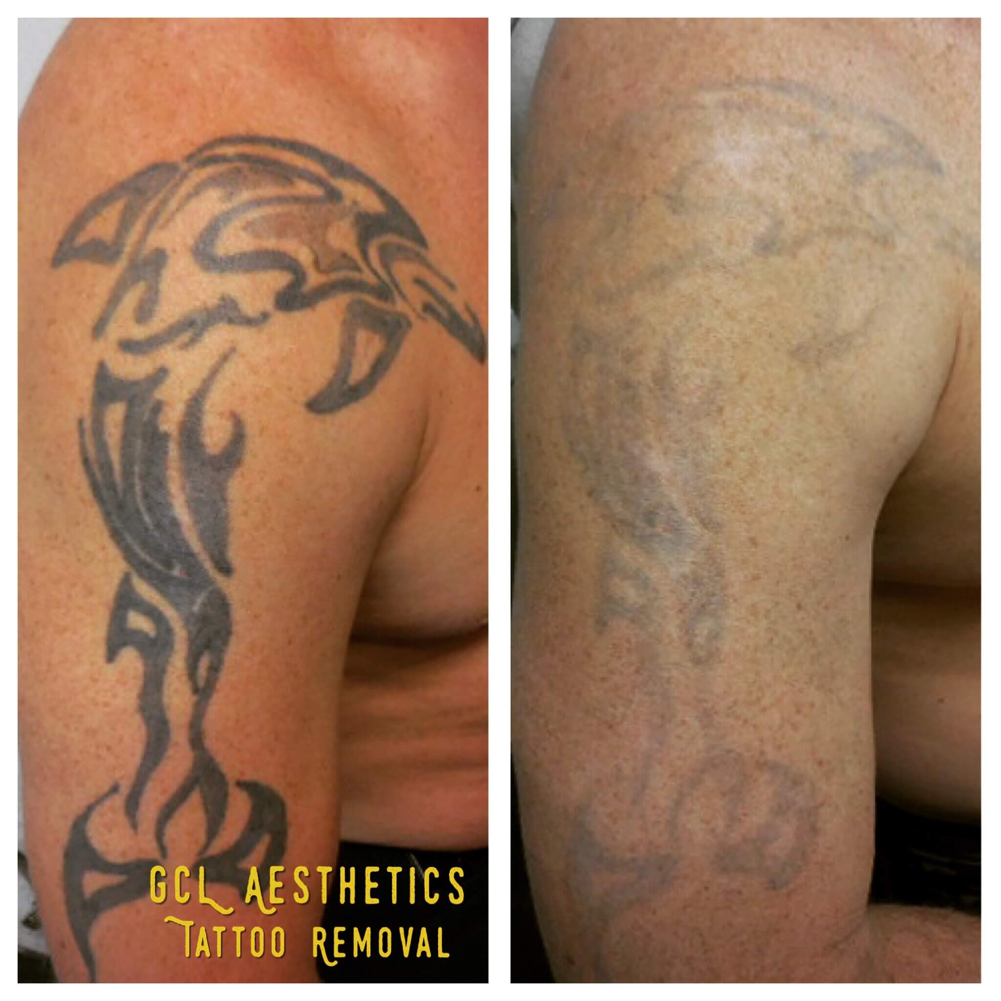 Orange County Tattoo Removal Gentle Care Laser Aesthetic