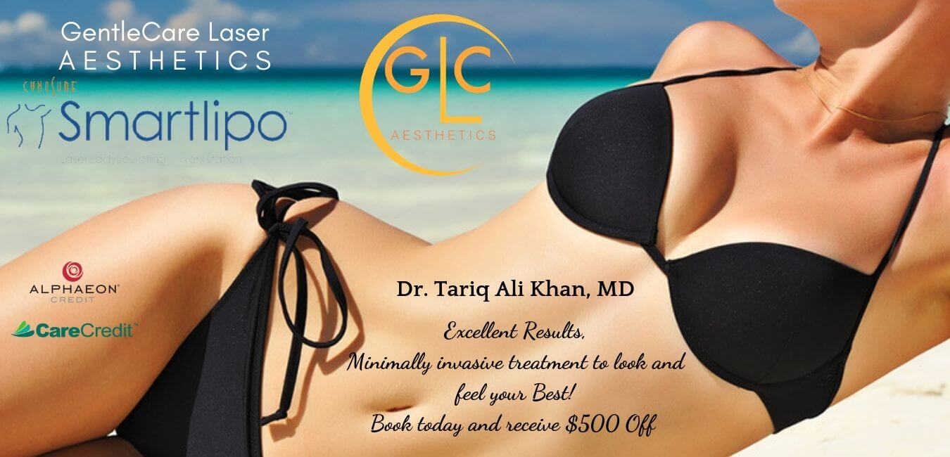 Smart lipo $500 off Gentle care Laser aesthetics